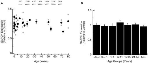 Developmental changes in GAPDH expression in human visual cortex. (A) Gray dots are results from all runs, and black dots are the average for each sample. Example bands are shown above the graph. (B) Group means and standard error for each developmental group.