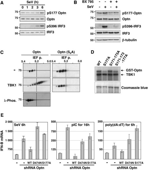Optn negative effect on the virus-induced interferon pathway requires its phosphorylation and ubiquitin-binding activity.(A) Phosphorylation status of Optn (on S177) and IRF3 (on S396) were determined by Western blot in uninfected HeLa cells and at different time after infection by Sendai virus. (B) Total cell lysates from HEK293T infected for 6h with SeV in the presence or absence of the TBK1-specific inhibitor BX795 were analyzed by Western blot using anti-pS177 Optn, anti-Optn, anti-pS396 IRF3, anti-IRF3 and anti-tubulin antibodies. (C) Total cell lysates extracted from HEK293T cells expressing either VSV-Optn (Optn, left panels) or VSV-Optn S162-170-171-173-174-177A (Optn-S6A, right panels) were transfected with empty vector (-) or with TBK1-expressing plasmid (TBK1) and subjected to two-dimensional gel electrophoresis. Optn isoforms were analyzed by immunoblotting with an anti-VSV antiserum. As control, lysates were pre-treated with lambda phosphatase (λ-Phos.) at 30°C. (D) HEK293T cells were transiently transfected with Flag-TBK1. TBK1 kinase assays were carried out using Flag immunoprecipitates as enzyme and GST-Optn wt, GST-Optn S177A, GST-Optn S171-173A or GST-Optn S171-173-177A as substrates. (E) IFN-B mRNA levels were determined by RT-QPCR in control HeLa cells, Optn-deficient cells and deficient cells reconstituted with wt, D474N- or S177A-mutated forms of Optn following infection by SeV or stimulation with dsRNA (pIC) or dsDNA (poly(dA):(dT)) and presented as mRNA transcripts levels related to the mRNA of 18S (set at 100). Mean ± SD values of expression levels are shown.