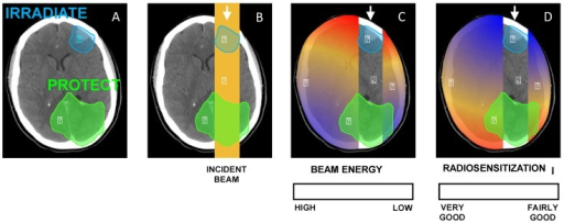 (A) Illustration of a clinical scenario where a volume (blue) has to be irradiated while a part of an organ (green) has to be protected. (B) A simple anterior beam is irradiating the blue volume. (C) The beam energy is maximum in the irradiation field and is reduced out of the field. (D) Given that the interaction probability is higher for low-energy photons, the radiosensitization in presence of NPs should be higher out of the irradiation field. In this case, the green volume that has to be protected would be in the most radiosenzitized area.