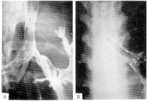 Bronchogram obtained before(a) and just after (b) placement of an endobronchial stents in proximal left main stem bronchus. Bronchogram shows restoration of adequate caliber of the left main stem bronchus after stent insertion.