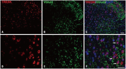 Immunofluorescence staining of TRESK (red) and VGlut2 (green) in the spinal dorsal horn of SNL rats. TRESK expression is associated with excitatory synapses. Scale bars=50 µm in A, B, and C, 20 µm in D, E, and F. TRESK, TWIK-related spinal cord K+; SNL, spinal nerve ligation.