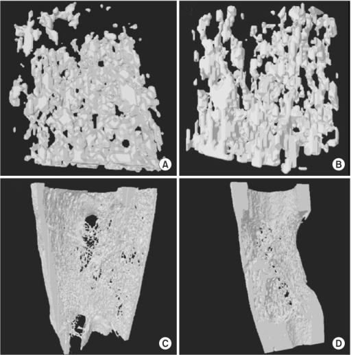 The three-dimensional (3D) reconstruction image of one voxel of interest showed that demineralized bone matrix (DBM) group (A) had denser trabecular bones than control group (B) at third week of consolidation period. The 3D reconstruction image of whole regenerate in distraction gap showed that DBM group (C) had well remodeled cortices when compared with control group (D) at the sixth week of consolidation period.