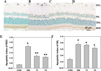 The number of apoptotic cells increased significantly following 10 weeks in the DM rats, and decreased following minocycline treatment. (A) A small number of apoptotic cells were present in the rat retinal tissue samples of the CON group. (B) The number of apoptotic cells increased significantly following 10 weeks in the DM rats. The apoptotic cells were located in the GCL, INL and ONL. (C and D) Following minocycline treatment, significantly less apoptotic cells were present in the retinal tissue samples of the DM rats in the T1 and T2 groups. (E) The apoptotic index in the GCL of the DM rats was significantly higher, as compared with the CON group. Following minocycline treatment, the elevated apoptotic index in the GCL of the retinal tissue samples of the DM rats was suppressed (F=53.57; *P<0.01 vs. CON). No significant difference was observed between the GCL apoptotic index of the T1 and T2 treatment groups (**P>0.05). (F) Apoptotic index of the INL of the DM rats was significantly elevated, as compared with the CON group. Following minocycline treatment, the elevated apoptotic index in the INL of the retinal tissue samples of the DM rats was unchanged (F=28.32; *P<0.01 vs. CON). No significant difference was observed between the INL apoptotic index of the T1 and T2 treatment groups (P>0.05). (Scale bars, 25 µm). CON, control group; DM, diabetic retinopathy group; T1, 2.5 mg/kg minocycline treatment group; T2, 5 mg/kg minocycline treatment group; GCL, ganglion cell layer; ONL, outer nuclear layer; INL, inner nuclear layer.