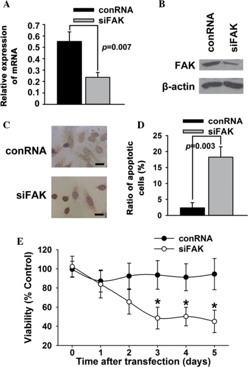 Knockdown of FAK induces apoptosis in T24 bladder cancer cells. T24 bladder cancer cells were transfected with small interfering RNA against FAK (siFAK) or control (conRNA). (A and B) The expression of FAK was examined using western blotting. (C and D) Cell apoptosis was examined using (C) deoxynucleotidyl transferase-mediated dUTP-biotin nick end labeling assay and (D) Annexin V/propidium iodide. (E) Cell survival was examined using an MTT assay. Scale bar, 200 µm. *P<0.05. FAK, focal adhesion kinase.