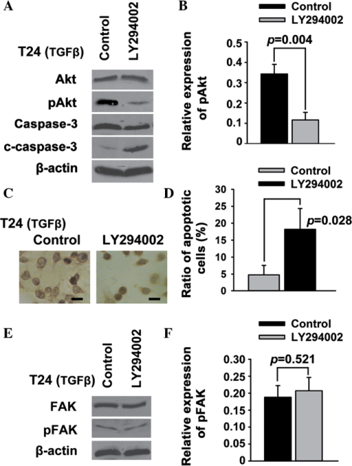 Phosphatidylinositol 3-kinase/Akt acts downstream of FAK signaling to regulate apoptosis in T24 bladder cancer cells. T24 bladder cancer cells were treated with LY294002. (A and B) The expression of Akt, pAkt, caspase-3 and c-caspase-3 was examined using western blotting. (C and D) Cell apoptosis was examined using (C) deoxynucleotidyl transferase-mediated dUTP-biotin nick end labeling assay and (D) Annexin V/propidium iodide. (E and F) The expression of FAK and pFAK was examined using western blotting. Scale bar, 200 µm. FAK, focal adhesion kinase; pFAK, phosphorylated FAK; c-caspase-3, cleaved caspase-3; TGFβ, transforming growth factor-β.