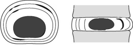 Illustration of a concentric annular injury, where the normal scalloping of the annulus fibrosus is expanded between the concentric lamellar architecture.