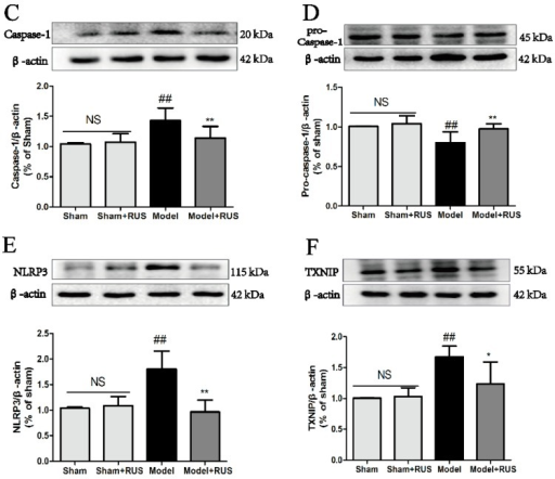 "Effects of ruscogenin on the TXNIP/NLRP3 pathway in mice following MCAO/R. (A–F) Representative Western blot bands and quantitative analysis of the ratio of IL-1β and pro-IL-1β, caspase-1 and pro-caspase-1, NLRP3 and TXNIP. The band intensities were measured using scanning densitometry. The data were normalized to β-actin expression (n = 3). NS means ""not significant"". The data are expressed as means ± SD. ##p < 0.01 vs. Sham, * p < 0.05, ** p < 0.01 vs. Model."