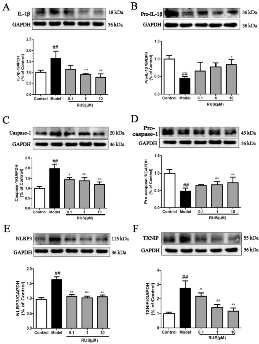 Effects of ruscogenin on the TXNIP/NLRP3 pathway in bEnd.3 cells subjected to OGD/R. (A–F) Representative Western blot bands and quantitative analysis of the ratio of IL-1β and pro-IL-1β, caspase-1 and pro-caspase-1, NLRP3 and TXNIP. The band intensities were measured using scanning densitometry. The data were normalized to GAPDH expression (n = 3). The data are expressed as means ± SD. ##p < 0.01 vs. Control, * p < 0.05, ** p < 0.01 vs. Model.