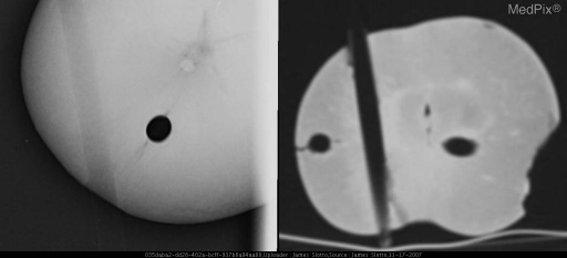 "Experimental Analog showing an Air Bronchogram using an Apple and a Straw. The patent ""airway"" is visible due to the density of the surrounding apple tissue. The left image is a plain film X-ray showing a straw in profile (left lucency) and on end (right circular lucency). The Right image is a CT slice again showing a straw in profile and two straws on end."