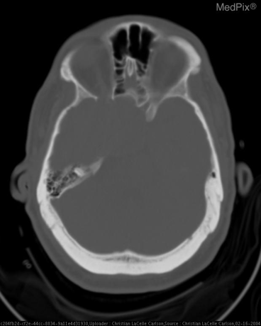 A large hyperdense extraaxial mass with hypodense cystic regions fills the right middle cranial fossa in the area of the sphenoid ridge.  The mass involves the skull base and indents the right frontotemporal parenchyma with local mass-effect and edema with protrusion into the right lateral ventricle and compression of the upper aspect of the right midbrain.  Basal cisterns and lateral ventricles remain open.  There has been bony remodeling and scalloping of the skull base.  Calcification and hyperostosis are also present.  There is no evidence of acute intracranial hemorrhage.