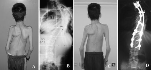 A: Preoperative photo of a 16-year-old boy with arthrogryposis. B: Preoperative x-ray reveals a rigid curve of 91 degrees. C: Postoperative photo of the same patient shows partial correction and improved trunk balance. D: Postoperative x-ray shows partial correction of the curve that manages to control further pulmonary deterioration.