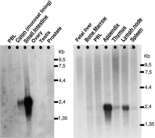 Northern analysis. PolyA+ RNA from different human tissues was hybridized with a specific decysin probe. Shown here are multiple tissue blot II (No. 7759-1; Clontech) and immune systems blot (No.  7754-1; Clontech). Not shown are tissue blots No. 7760-1 and No.  7756-1 as they were completely negative. Exposure time was 2 wk.