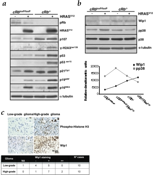 Rb loss enhances DNA damage response (DDR) induced by oncogenic Ras and reduces the p-p38MAPK levels by upregulation of Wip1.a, HRasV12 is able to induce DDR markers expression, such as p16INK4a, p21Cip1 and p19ARF, p53 and p53ser15 and γ-H2AXser139. Rb loss, in the presence of oncogenic Ras, increases this response. Immunoblot analysis was performed on astrocytes lysates prepared at day 6 after co-infection and selection with puromycin. b, Immunoblot analysis of p-p38MAPK and Wip1 levels was performed on cell lysates prepared at day 5 from co-infection and selection with puromycin. Densitometric analysis (in relative densitometric units) of Wip1 and p-p38MAPK protein levels. c, TMA analysis of Wip1 expression in glioma clinical samples. Representative pictures of samples are shown. The table shows median values. Wip1 immunoreactivity intensity was assigned according to the following scale: NA, non-assessable cases; −, less than 10% of neoplastic cells displayed immunoreactivity; +, 11–29% of neoplastic cells displayed immunoreactivity; ++, 30% or greater percentage of neoplastic cells displayed immunoreactivity. Phospho-histone H3 was used as a proliferation marker. Scale bars, 50 µm.