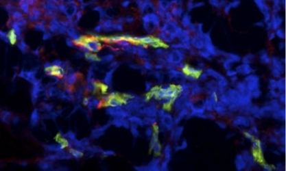 Vascular endothelial cells (green) express δ-catenin (red).