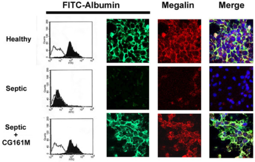 Effect of resin adsorption on albumin internalization and expression of megalin by TEC. Representative FACS and confocal microscopy analysis of FITC-albumin uptake (green fluorescence) and megalin expression (red fluorescence) in tubular epithelial cells (TEC) incubated with control healthy plasma or septic plasma before and after (Septic + CG161 M) Amberchrom resin adsorption. For FACS analysis, Kolomogorov Smirnov statistical analysis was performed. In merge images, nuclei were counterstained by 0.5 μg/ml Hoechst.
