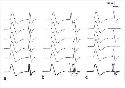 Single fiber EMG recordings: (a) Normal; (b) Increased; Jitter (c) Blocking both increased jitters, and blocking is seen in the neuromuscular disorders. (With permission from EMG and Neuromuscular Disorders, Preston and Shapiro; Butterworth - Heinemann)