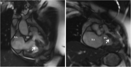 Two-dimensional cine MRI showing anomalous muscle bundle (arrow). RV: right ventricle, RA: right atrium.