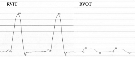 Cardiac catheterization showing systolic pressure gradient between RVIT and RVOT. RVIT: right ventricular inlet tract, RVOT: right ventricular outlet tract.