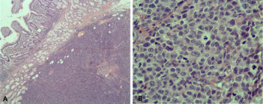 Histological examination (hematoxylin-eosin). (A) The lesion located under the enteric mucosa with diffusely infiltrative tumor cells without obvious mucosal destruction (Objective × 4); (B) The tumor cells showed markedly cytologic atypia with large eosinophilic nucleoli, abundant mitotic figures and moderate cytoplasm, however, without visible melanin pigment (Objective × 40).