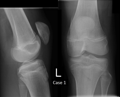 Plain film radiographs of Case 1 at 17 months.