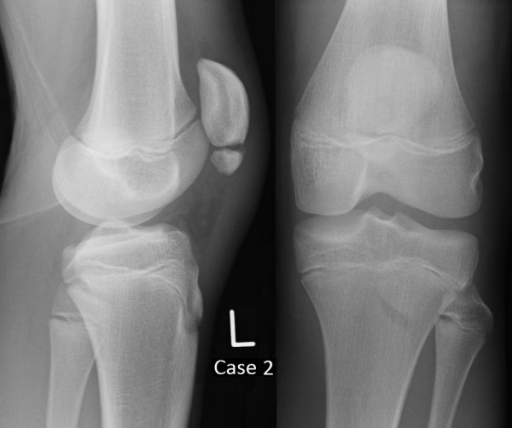 Plain film radiographs of Case 2 at presentation.