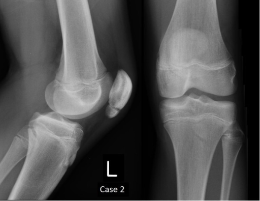 Plain film radiographs of Case 2 at 12 weeks.