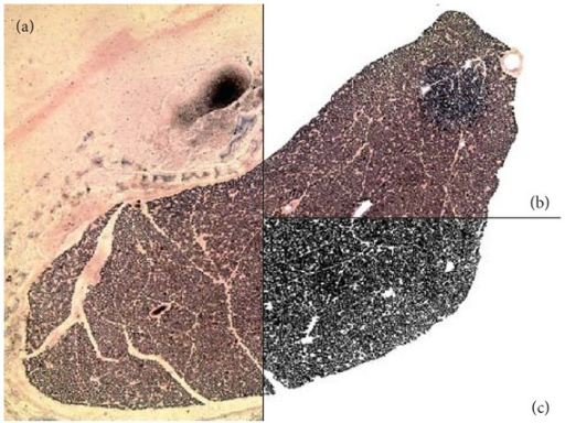 Myelin density quantification: (a) original sciatic nerve photomicrograph; (b) photomicrograph of the sciatic nerve with the peripheral and blood capillaries areas cleared; (c) photomicrograph in binary (black and white) used during quantification.