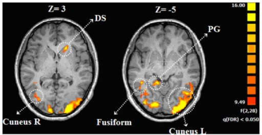 Brain regions associated with the effect of guilt.Error bars indicate standard error. Abbreviation: DS , dorsal striatum ;PG ,parahippocampal gyrus.