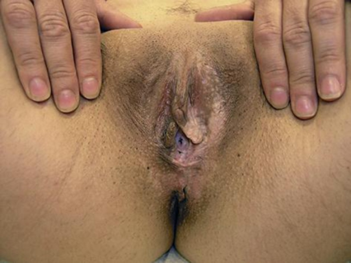 White atrophic patches which extend onto the perineum in A.T.