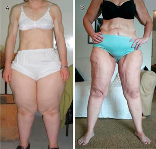 Acquired partial lipodystrophy and lipedema. A, a 37 ye | Open-i