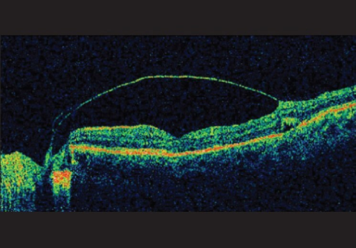 Horizontal raster line scan at the fovea in a 14-year-old female with optic disc pit maculopathy shows a splitting of the ILM by intraretinal fluid
