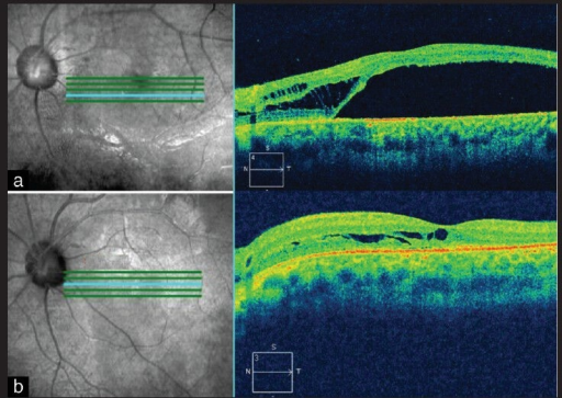 (a) OCT shows intraretinal fluid (schisis) and outer layer detachment in a 18-year-old female with optic disc pit maculopathy (Case 8). (b) OCT 10 months after vitreous surgery shows minimal residual schisis and complete resolution of outer layer detachment