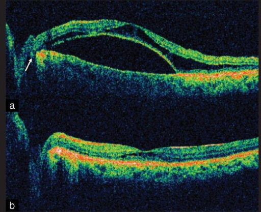 (a) OCT shows intraretinal fluid (schisis) and outer layer detachment in a 25-year-old female with optic disc pit maculopathy (Case 1). A conduit between the optic disc pit and intraretinal fluid is visible (arrow). (b) OCT 12 months after vitreous surgery shows complete resolution of maculopathy
