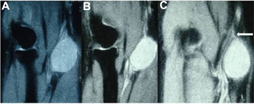 (A, B) Schwannoma with high signal intensity in T2-weighted axial right forearm MRI. (C) T2-weighted frontal MRI image showing a hyperintense tumoral process in the upper third of the right forearm.