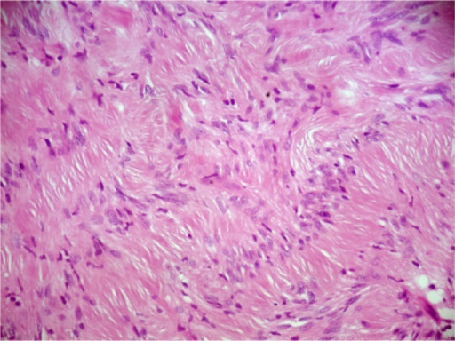 Histological examination of the tumor showing characteristic pattern of benign schwannoma: non-nucleated fibrillar areas lined by a palisade of Schwann cell nuclei (hematoxylin and eosin stain, original magnification × 200).
