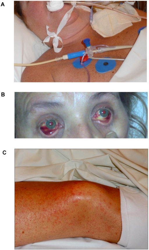 Clinical manifestations of Lujo haemorrhagic fever in Patient 5, including facial and neck swelling (A), subconjunctival haemorrhage (B), and maculopapular rash(C).