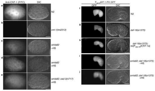 CED-3-dependent translocation of CNT-1 to the plasma membrane blocks AKT-1 membrane recruitment. (a–e) Immunostaining of CNT-1 in C. elegans embryos. FITC (left) and Differential Interference Contrast (DIC, right) images of the stained embryos with the indicated genotype were shown. –HS, no heat-shock treatment. +HS, with heat-shock treatment. (f–j) Microscopy analysis of AKT-1-PH::GFP localization in C. elegans embryos. All strains contained the same ex[Psur-5AKT-1-PH::GFP] transgenic array. Embryos with the indicated genotype were examined with or without heat-shock treatment. GFP (left) and DIC (right) images of transgenic embryos were shown. In all panels (a–j), scale bar represents 10 μm.
