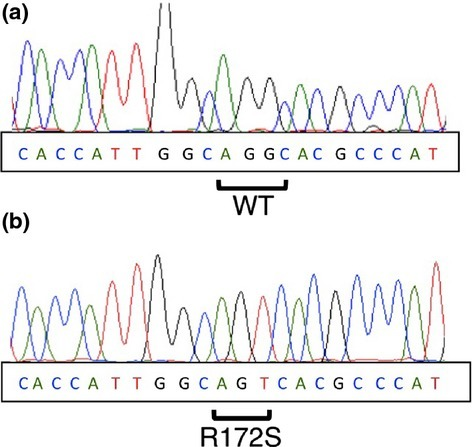 Mutational analysis of isocitrate dehydrogenase 1/2 in giant cell tumor of bone. (a) DNA direct sequencing of giant cell tumor of sample no. 3. (b) Subcloning of PCR products.