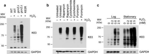 K63 ubiquitination is linked to active translation(a–c) Anti-K63 ubiquitin western blot of lysates from (a) WT, gcn2Δ and K63R mutant cells, (b) WT cells treated for 30 min with designated translation inhibitors prior to H2O2 treatment and (c) WT cells grown into Log phase OD600 = 0.4 or after 24 h in culture starting from OD600 = 0.2 (Stationary), in the presence (+) or absence (–) of the indicated compounds. Anti-GAPDH was used as loading control. WT, wild-type SUB280 yeast strain. K63R, ubiquitin K63R mutant SUB413 yeast strain. MW, molecular weight.