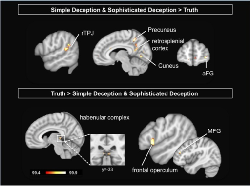 Upper Panel: Intention to deceive in strategic interactions: Results are shown for the contrast simple deception and sophisticated deception trials vs. truth trials. Lower Panel: Telling the truth: Results are shown for the contrast truth trials vs. simple deception and sophisticated deception trials. Abbreviations: aFG, anterior frontal gyrus; MFG, middle frontal gyrus; rTPJ, right temporo-parietal junction. For visualization, a threshold of 99.4% was applied to the probability maps.