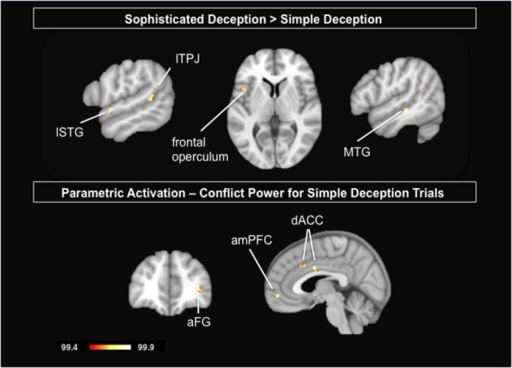 Upper Panel: Delineating the two forms of deception: Results are shown for the contrast sophisticated deception trials vs. simple deception trials. Lower Panel: Parametric analysis modeling the incentive to deceive for simple deception trials: Results are shown for the positive correlational analysis, i.e., the activation is stronger the higher the conflict and thus the tension in payoffs between sender and receiver. Abbreviations: aFG, anterior frontal gyrus; amPFC, anterior median prefrontal cortex; dACC, dorsal anterior cingulate cortex; lSTG, left superior temporal gyrus; lTPJ, left temporo-parietal junction; MTG, middle temporal gyrus. For visualization, a threshold of 99.4% was applied to the probability maps.