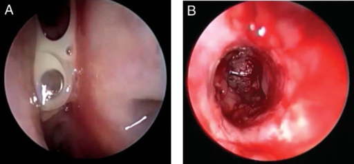 Follow-up nasal endoscopy showed the silastic stent in proper position but with mucopurulent secretions present (A). After stent removal and ostial dilation, inflamed mucosa could be seen lining the frontal sinus (B).