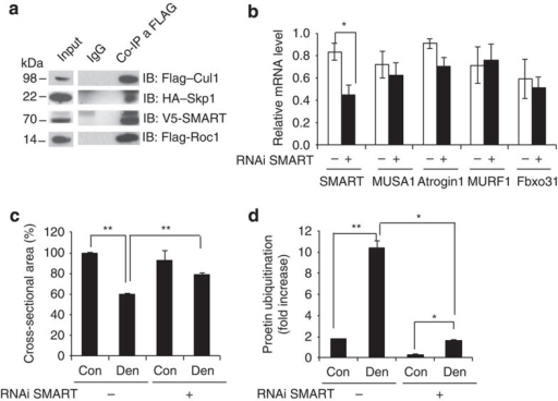 Smart is a novel ubiquitin ligase required for denervation-dependent atrophy.(a) Co-immunoprecipitation experiment showing that SMART is a F-box protein that forms a SCF complex. C2C12 muscle cell lines were transfected with SMART, Skp1, Cul1 and Roc1 expression plasmids. After 24 h, cells were lysed and immunoprecipitation against FLAG-tag or control IgG was performed. Western blots for the different SCF components are shown. (b) RNAi-mediated knockdown of SMART revealed by quantitative RT–PCR (qRT–PCR). Adult TA muscles were transfected with bicistronic expressing vectors that encode either oligo 4 or scramble and GFP. Two weeks later TA muscles were collected, RNA extracted and endogenous SMART, MUSA1, Atrogin1, MuRF1 and Fbxo31 expression were analysed by qRT–PCR, n=4. (c) Inhibition of SMART prevents muscle atrophy in denervated muscles. Adult muscle fibres were co-transfected with bicistronic expressing vectors that encode shRNAs against SMART (oligo 4) or scramble and GFP and denervated. Two weeks later cross-sectional area of transfected fibres, identified by GFP fluorescence, was measured. n=6 muscles for each group. (d) Densitometric quantification of polyubiquitinated proteins in muscle extracts transfected with shRNAi against SMART or scramble. Values are normalized to GAPDH and expressed as fold increase of fed control mice. n=3 muscles for each group. Data are shown as mean±s.e.m. Error bars indicate s.e.m. *P<0.05, **P<0.01 (Student's t-test). con, control; den, denervated; IB, immunoblotting.
