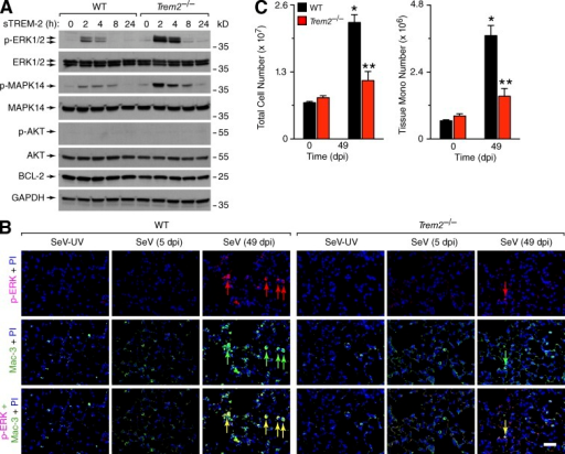 Effect of TREM-2 deficiency on apoptosis signaling pathway. (A) Western blot levels of indicated cell survival proteins in BMDMs cultured from WT and Trem22/2 mice after treatment with mouse sTREM-2 (200 ng/ml) for 0–24 h. (B) Representative photomicrographs of phospho-ERK1/2 (p-ERK) and Mac-3 immunostaining with DAPI counterstaining of lung sections from WT and Trem22/2 mice at 5 or 49 dpi with SeV or SeV-UV. Arrows indicate cells with double-positive immunostaining. Bar, 200 µm. (C) Flow cytometry analysis of lung levels of total cells and tissue monos for WT and Trem22/2 mice at 0 and 49 dpi. Values represent mean ± SEM for 5 mice, and * represents a significant increase from 0 dpi and ** a significant decrease from corresponding WT mice. Values at 0 dpi were no different than those for SeV-UV (49 dpi). All experimental data were verified in at least three independent experiments.