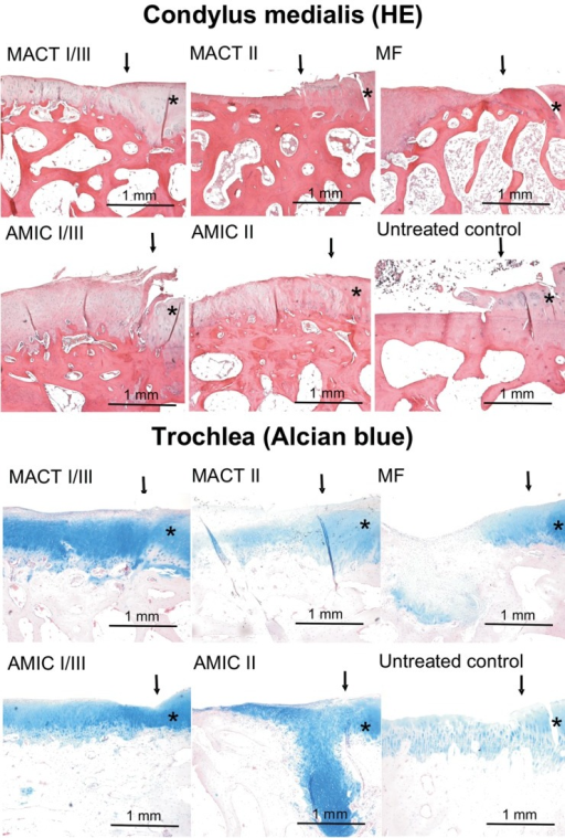 Examples of hematoxylin-eosin stained sections from defects in the condylar and Alcian blue–stained defects in the trochlear region. Arrows mark the borders of the defects; stars indicate more or less intact cartilage tissue surrounding the defect area. Because of the high variance in staining and structure of the tissue, these examples do not represent a mean histological outcome of the corresponding experimental group but give an impression of the quality of histological staining and structure in general.Note: MACT I/III = matrix-associated autologous chondrocyte transplantation + Chondro-Gide scaffold; MACT II = matrix-associated autologous chondrocyte transplantation + Chondrocell scaffold; MF = microfracture; AMIC I/III = autologous membrane-induced chondrogenesis + Chondro-Gide scaffold; AMIC II = autologous membrane-induced chondrogenesis + Chondrocell scaffold.