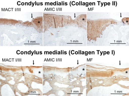 Examples of immunohistochemical collagen type II and type I staining in condylar defects of different experimental groups. Collagen expression is indicated by brown staining. There is no collagen type II staining in subchondral bone, while bone tissue is positively stained for collagen type I, giving an internal positive control. Arrows mark the borders of the defects; stars indicate more or less intact cartilage tissue surrounding the defect area. Because of the high variance in staining, these examples do not represent a mean intensity of staining of the corresponding experimental group but give an impression of the quality of staining in general.Note: MACT I/III = matrix-associated autologous chondrocyte transplantation + Chondro-Gide scaffold; MF = microfracture; AMIC I/III = autologous membrane-induced chondrogenesis + Chondro-Gide scaffold.