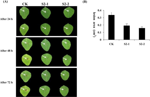 Overexpression of the GmPRP gene in soybean leaves enhanced the resistance to P. sojae.(A) Disease symptoms after infection with P. sojae. (a) Soybean leaves 24 h after inoculation. (b) Soybean leaves 48 h after inoculation. (c) Soybean leaves 96 h after inoculation. Column CK, leaves of non-transgenic soybean. Columns S2-1 and S2-2, leaves of transgenic soybean. (B) Lesion size of transgenic soybean leaves infection with P. sojae after 96 h. All data represent the mean values of three replications.