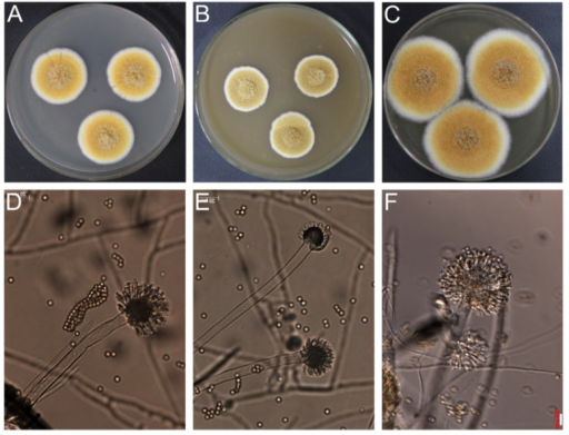 Morphological characteristics of the fungal strain SD317. Colonies on agar media (A) CYA; (B) MEA; (C) YES; (D–F) conidiophores. Bar, 10 μm.