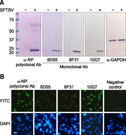 The reactivity of rabbit polyclonal antibody and mouse monoclonal antibodies (mAbs) against the NP in Western blot and immunofluorescence assay (IFA). (A) Western blot analysis of one polyclonal antibody and three mAbs in Vero cells before and after SFTSV infection. NP expression was assessed at 6 days post infection (dpi = 6), and mock-infected cells were included. Each cell lysate was separated on an 8–16% gradient SDS-PAGE gel and transferred to membranes for Western blot analysis. The α-GAPDH antibody was used as a loading control. (B) Rabbit anti-NP and mouse anti-SFTSV polyclonal antibodies were diluted 1 : 1,000 for immunoblotting and 1:200 for IFA. Three mAbs were diluted 1 : 1,000 for immunoblotting and 1 : 50 for IFA, and the secondary antibodies for rabbit and mouse IgG were diluted 1 : 1,000 for immunoblotting and 1 : 200 for IFA. DAPI staining (4',6-diamidino-2-phenylindole) was used to stain the cell nuclei.