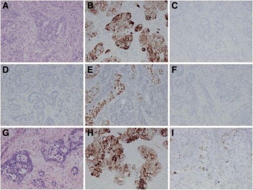 Case 1 Metastases Of Rectal Cancer To The Lung And Liv Open I